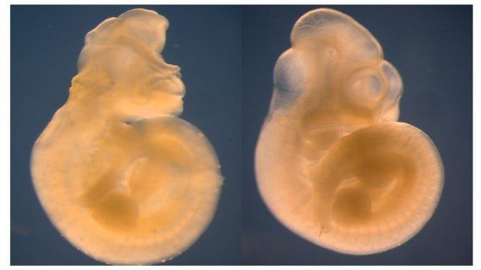 Embrión malformado de madre diabética desprovisto de Alx3 (izquierda) comparado con uno normal