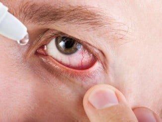 Una de las recomendaciones esenciales es mantener el ojo bien hidratado