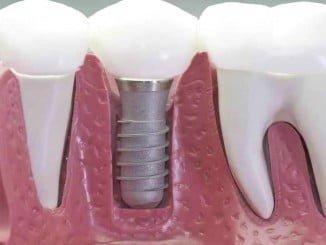 Los implantes dentales se han convertido en una nueva opción frente a las prótesis removibles