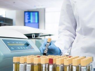 Los test determinan y cuantifican las sustancias psicoactivas mediante técnicas de gran precisión